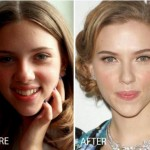 Scarlett Johansson Nose Job Before After 150x150 Scarlett Johansson Breast Reduction Before and After