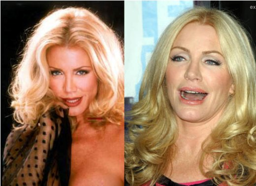 Shannon Tweed Plastic Surgery Shannon Tweed Plastic Surgery Before and After