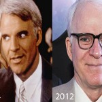 Did Steve Martin Have Plastic Surgery?