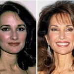 Susan Lucci Plastic Surgery 150x150 Jack Wagner Plastic Surgery Before and After