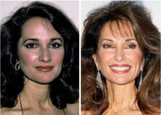 Susan Lucci Plastic Surgery Susan Lucci Plastic Surgery Before and After