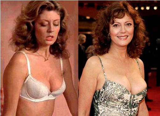 Susan Sarandon Breast Implant Susan Sarandon Plastic Surgery Before and After