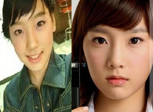 Taeyeon Plastic Surgery Rumor Did Taeyeon SNSD Undergoes Plastic Surgery?