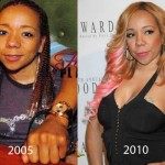 Tameka Cottle Plastic Surgery Before and After