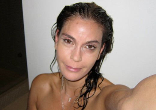 Teri Hatcher Botox Did Teri Hatcher Have Plastic Surgery?