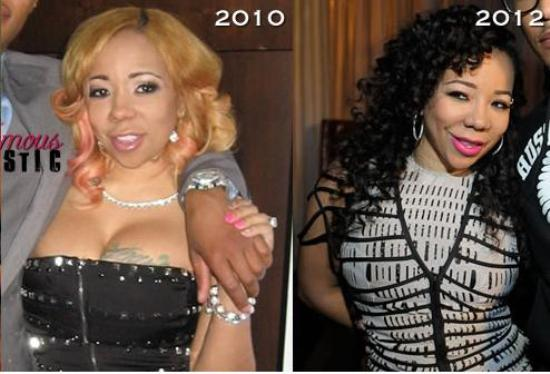 Tiny Cottle Plastic Surgery Tameka Cottle Plastic Surgery Before and After