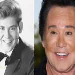Wayne Newton Plastic Surgery Before and After Picture