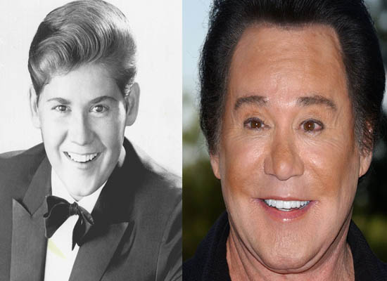 Wayne Newton Plastic Surgery Wayne Newton Plastic Surgery Before and After Picture
