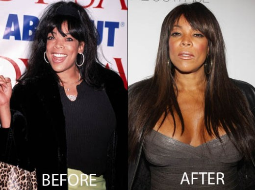 Wendy Williams Plastic Surgery Wendy Williams Plastic Surgery Before and After