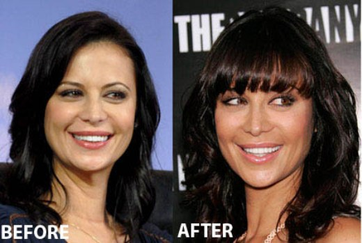 Catherine Bell plastic surgery Catherine Bell Plastic Surgery Before and After