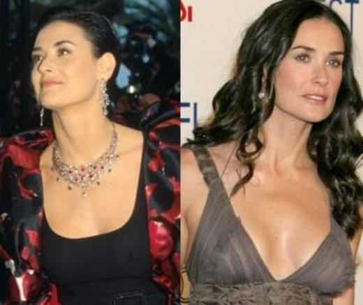 Demi Moore Breast Implants Before After Did Demi Moore Have Breast Implants?