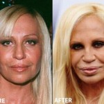 Donatella Versace Plastic Surgery 150x150 Helen Hunt Bad Plastic Surgery Before and After