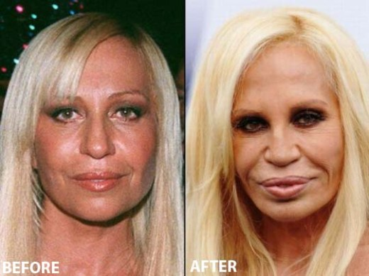 Donatella Versace Plastic Surgery Donatella Versace Plastic Surgery Before and After