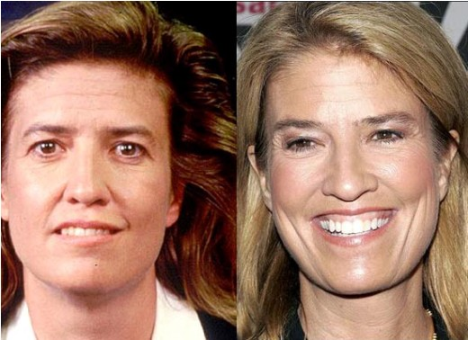 Greta Van Susteren Plastic Surgery Greta Van Susteren Plastic Surgery Before and After