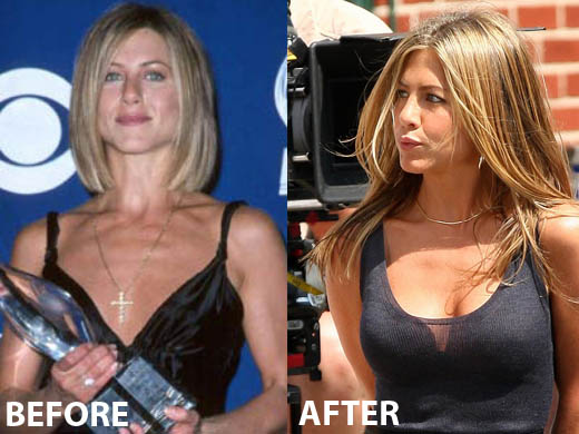 Jennifer Aniston Breast Implant Jennifer Aniston Breast Implant Before and After
