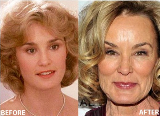 Jessica Lange Plastic Surgery Jessica Lange Plastic Surgery Before and After