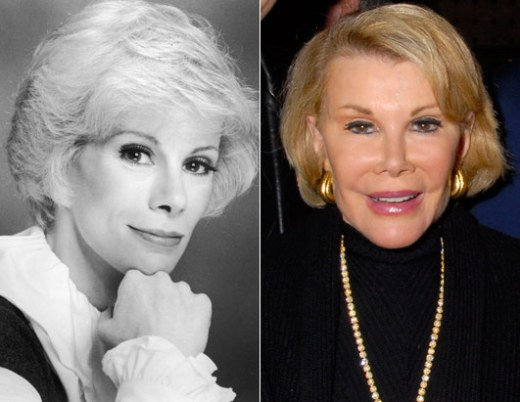 Joan Rivers Plastic Surgery Joan Rivers Plastic Surgery Before and After