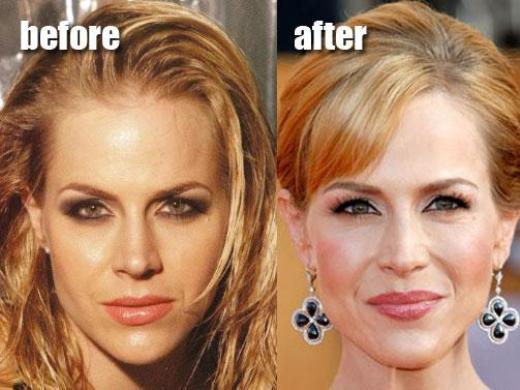 Julie Benz Plastic Surgery Before After Julie Benz Plastic Surgery Before and After