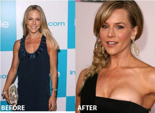 Julie Benz Plastic Surgery Julie Benz Plastic Surgery Before and After