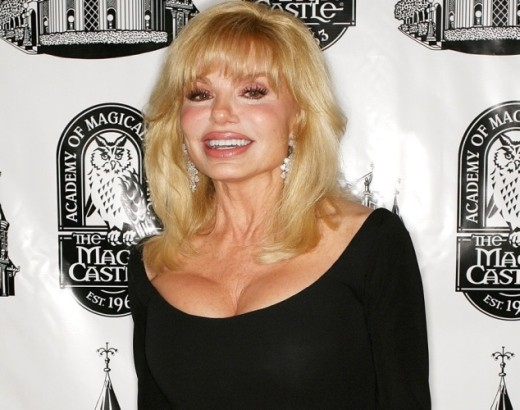 Loni Anderson Plastic Surgery Did Loni Anderson Have Plastic Surgery?