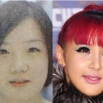 Park Bom Plastic Surgery Before and After