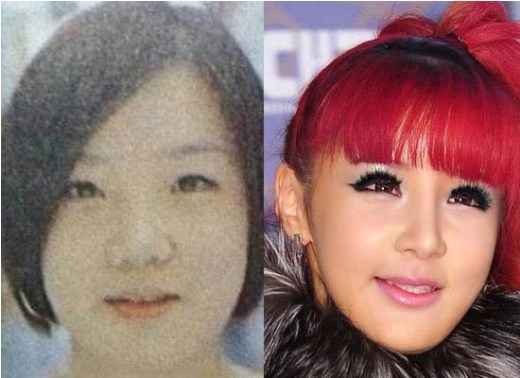 Park Bom Plastic Surgery Park Bom Plastic Surgery Before and After