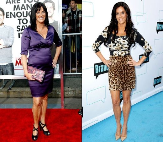 Patti Stanger Plastic Surgery Before After Patti Stanger Plastic Surgery Before and After