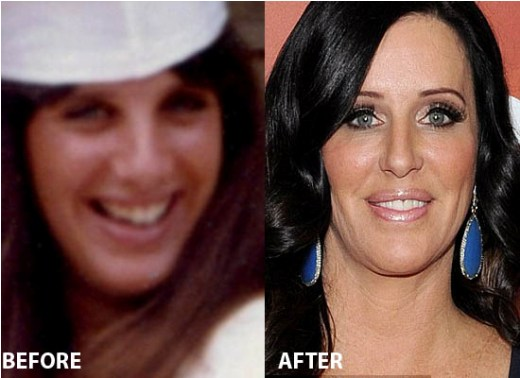 Patti Stanger Plastic Surgery Pics Patti Stanger Plastic Surgery Before and After