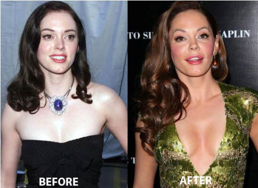 Rose Mcgowan Plastic Surgery Rose Mcgowan Plastic Surgery Before and After