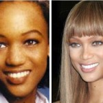 Tyra Banks Nose Job Before and After
