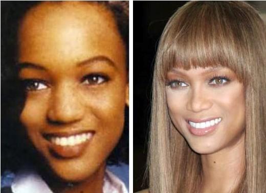 Tyra Banks Nose Job Tyra Banks Nose Job Before and After