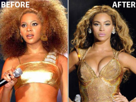 Beyonce Breast Implants Beyonce Breast Implants Before and After