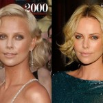 Did Charlize Theron Have Plastic Surgery?