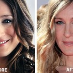 Sarah Jessica Parker Nose Job 150x150 Sarah Michelle Gellar Nose Job Before and After