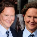 Judge Reinhold Plastic Surgery Before and After