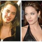 Did Angelina Jolie Have Plastic Surgery ?