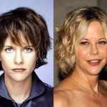 Did Meg Ryan Have Plastic Surgery?