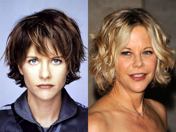 Meg Ryan Plastic Surgery Did Meg Ryan Have Plastic Surgery?