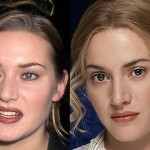 Kate Winslet Nose Job Before and After