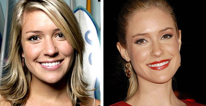kristin cavallari before and after Did Kristin Cavallari Have Plastic Surgery ?