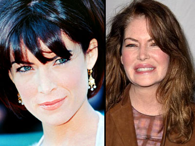 lara flynn boyle plastic surgery before and after Lara Flynn Boyle Plastic Surgery Before and After