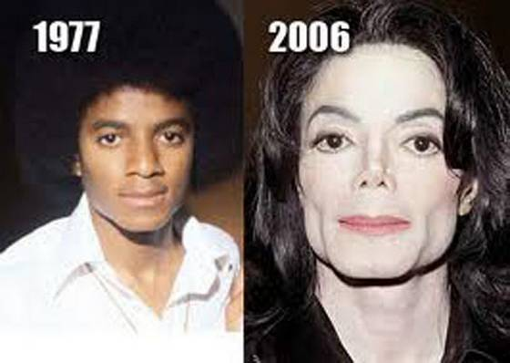 michael jackson plastic surgery before and after Michael Jackson Plastic Surgery Before and After