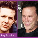 mickey rourke plastic surgery pics 150x150 Did Meg Ryan Have Plastic Surgery?