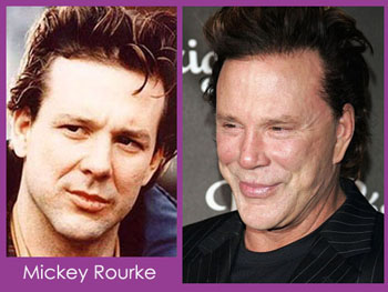 mickey rourke plastic surgery pics Mickey Rourke Plastic Surgery Before and After