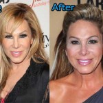 Adrienne Maloof Plastic Surgery Before After