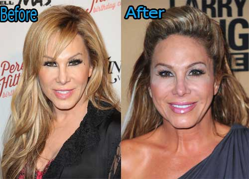 Adrienne Maloof Plastic Surgery Before and After Pictures Adrienne Maloof Plastic Surgery Before After