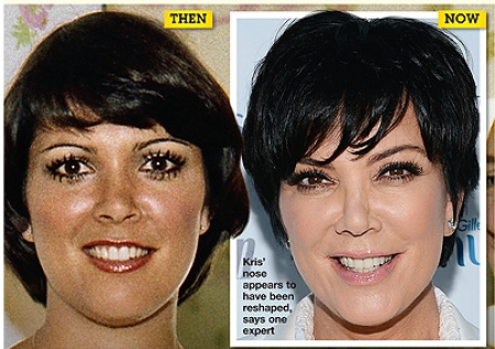 Kris Jenner Plastic Surgery Kris Jenner Plastic Surgery for Breast Implant and Facelift