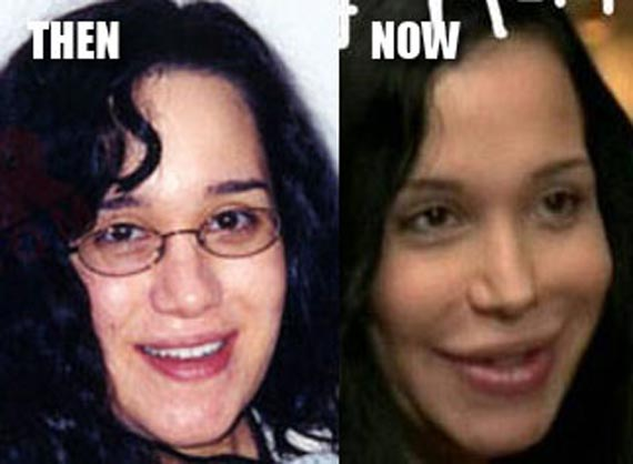 Nadya Suleman Plastic Surgery Nadya Suleman Plastic Surgery Before and After