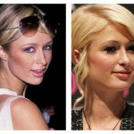 Has Paris Hilton Had Plastic Surgery ?