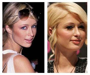 ParisHiltonPlasticSurgeryBeforeAndAfter Has Paris Hilton Had Plastic Surgery ?